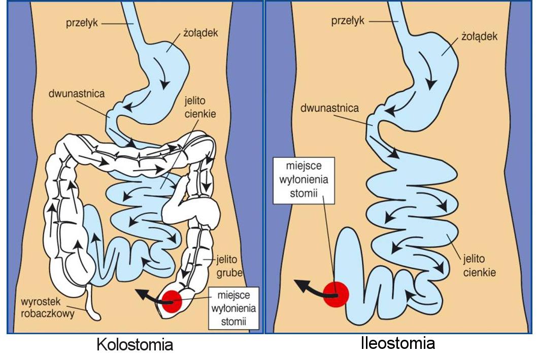 kolostomia i ileostomia-szkic